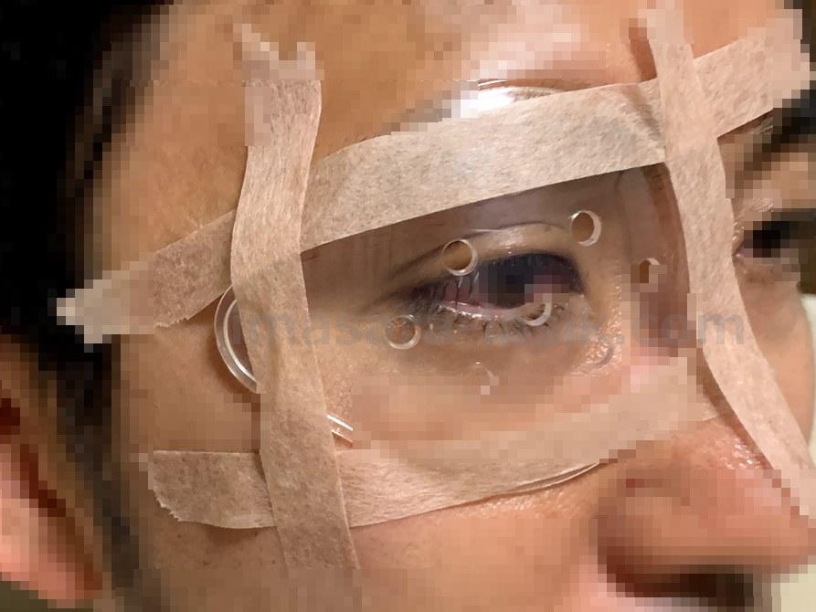 ICL手術後の眼帯