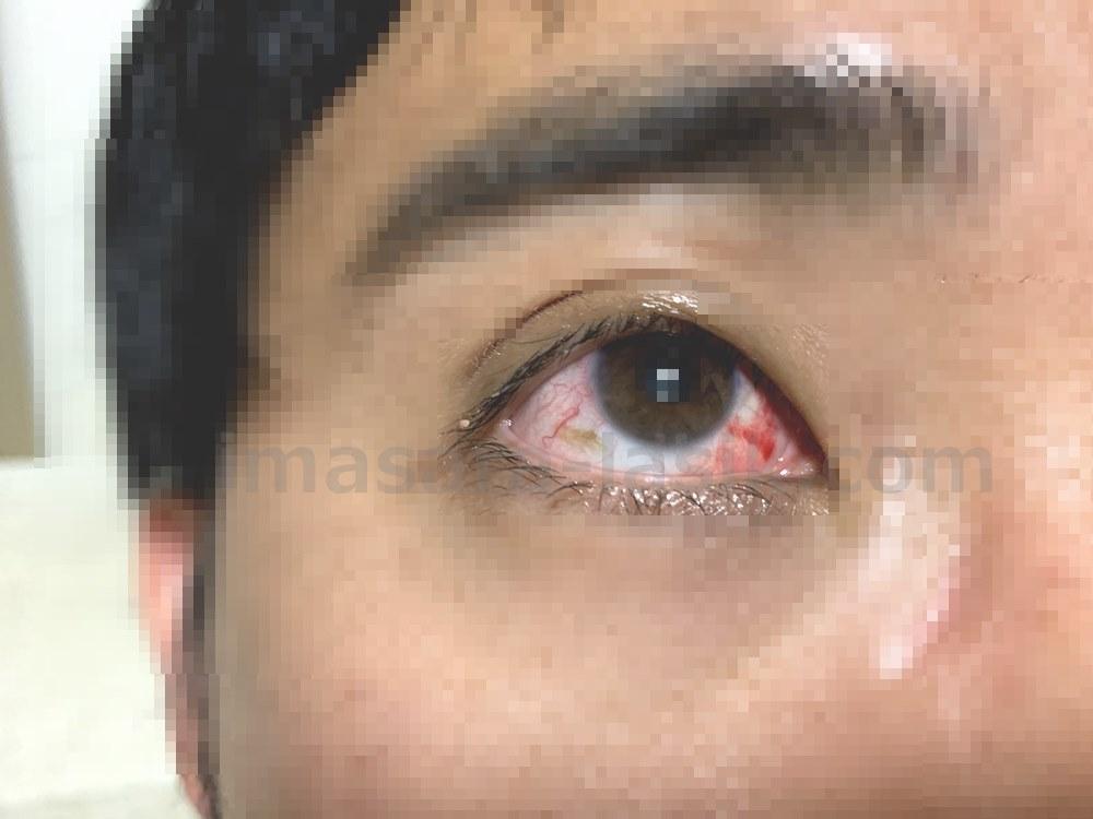 ICL手術当日の眼の様子